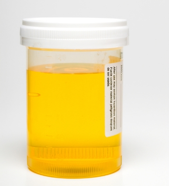 Going to the Vet – How to Collect Your Dog's Urine Sample